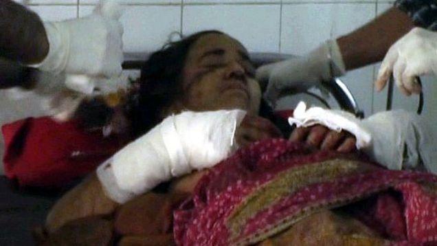 56-летняя индианка победила леопарда в смертельной схватке